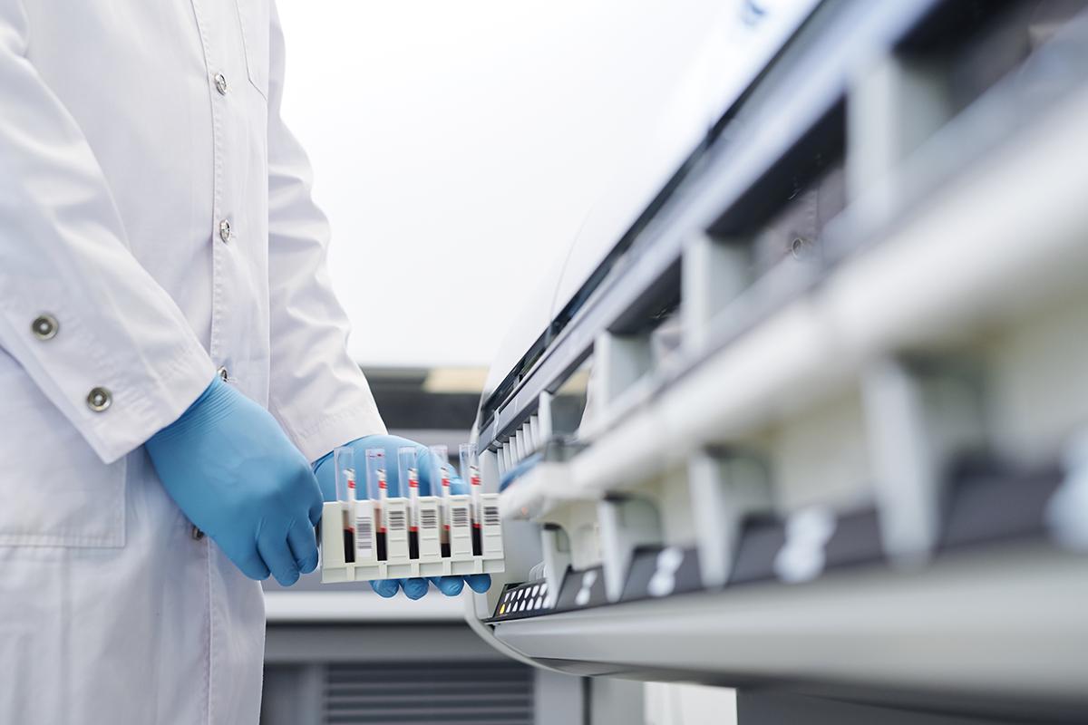 Verificação de atividade antiviral de Peptídeos Intragênicos Antimicrobianos (IAPs)